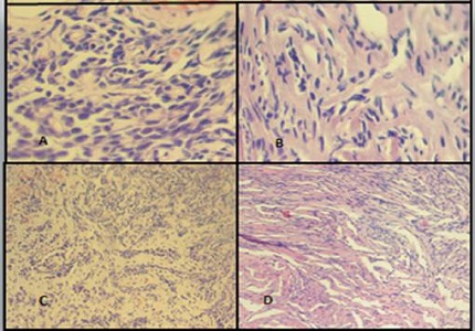 Solitary Fibrous Tumor of Cerebellopontine angle – A case report and review of literature