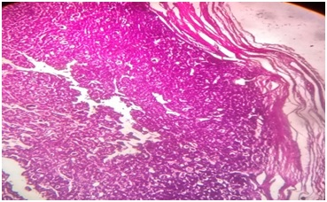 Comparative evaluation of Bethesda system with conventional reporting method in assessment of thyroid malignancy rate