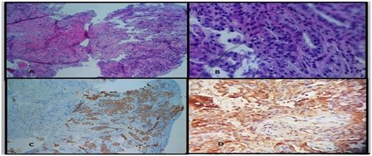 Lung metastasis in secretory carcinoma breast –Rare presention