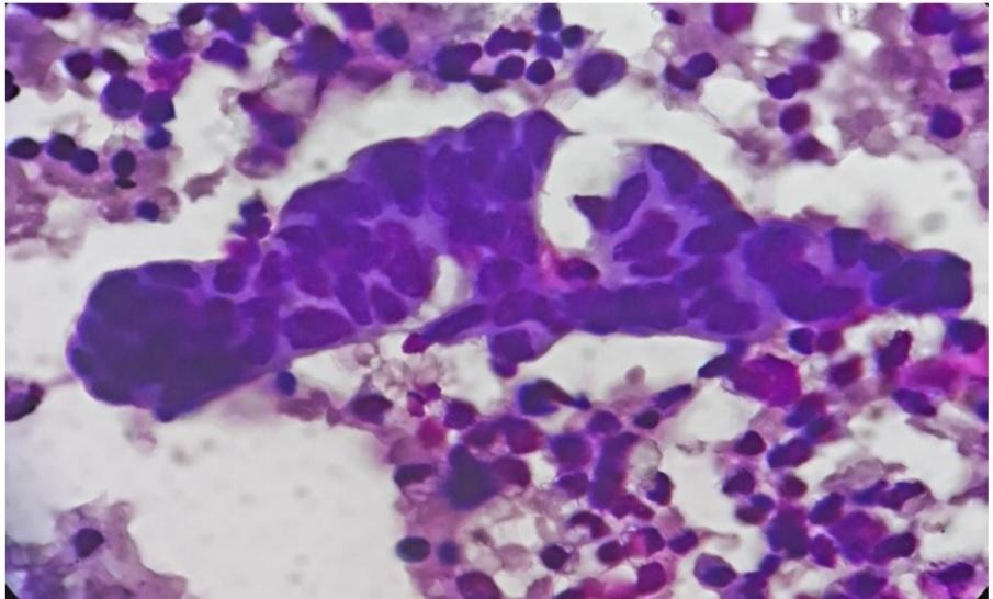 Cytological study of body fluids for malignancy