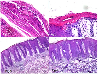 The spectrum of histomorphological features in psoriasis: a three years study