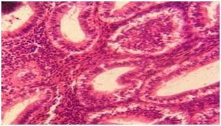 Histopathological evaluation of endometrial biopsies and curetting's in abnormal uterine bleeding