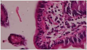 Celiac disease and its histopathology