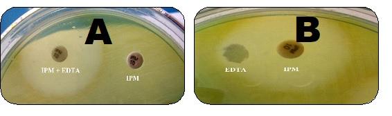 Prevalence of MBL producing pseudomonas aeruginosa in various clinical specimens in tertiary care hospital, Karimnagar