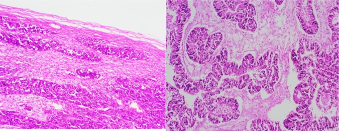 Histopathological spectrum of hysterectomy specimens and its correlation with clinical diagnosis at a tertiary care centre