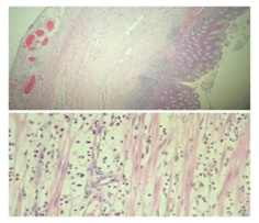 Histopathological correlation of resected appendicectomy specimens - a five year study in a tertiary care centre in Kerala