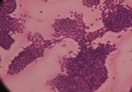 Correlative study of FNAC and histopathology for breast lesions